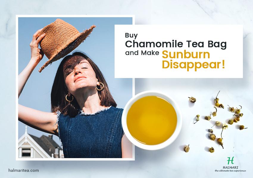 Chamomile Tea Make Sunburn Disappear